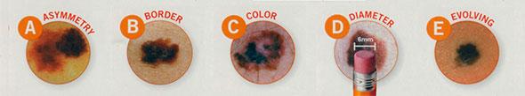 melanoma-abcde