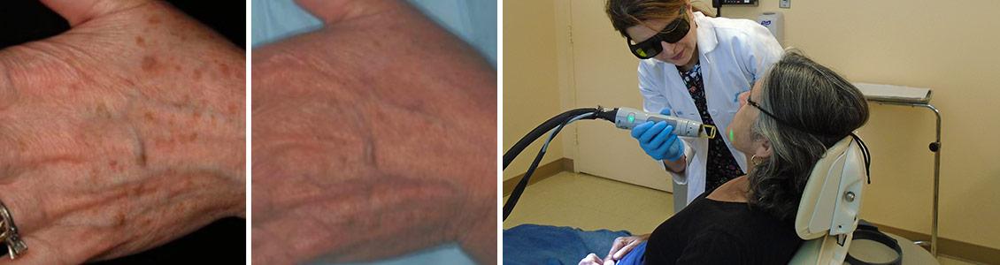 dermatologic laser surgery