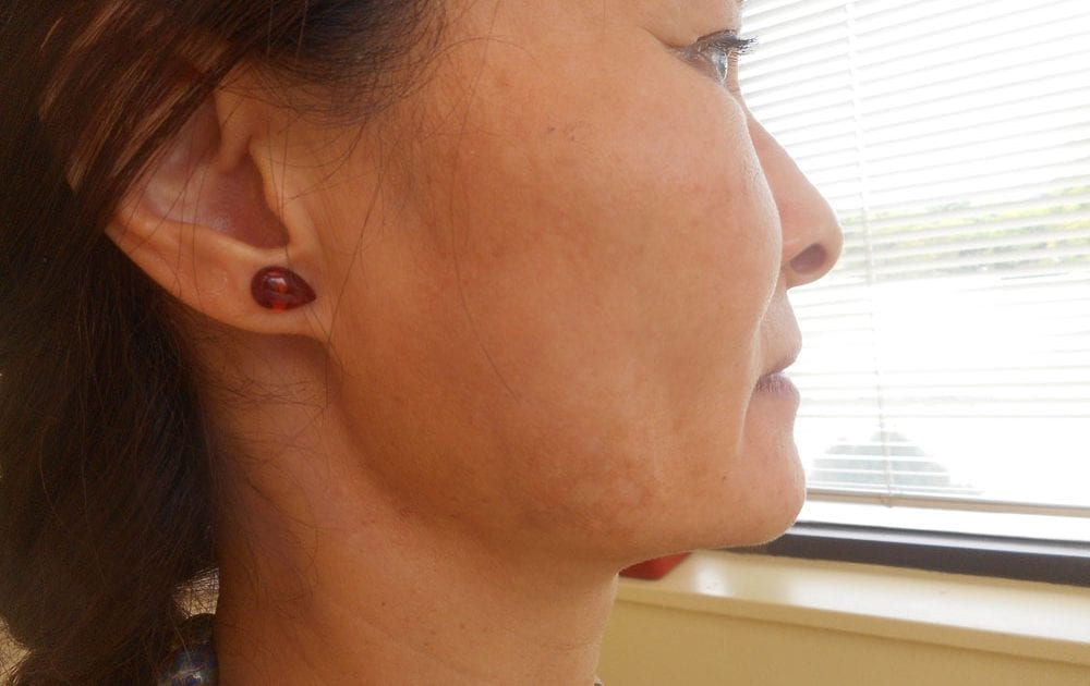 melasma example dark spots on cheek