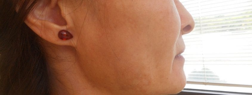 melasma example dark spots on cheek