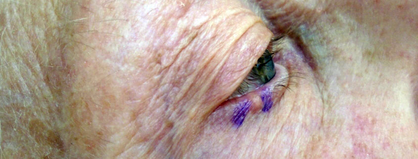 R-lower-eyelid-BCC-845x321