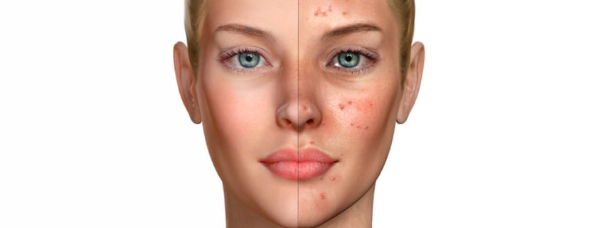 3d illustration of a woman before and after acne treatment proce