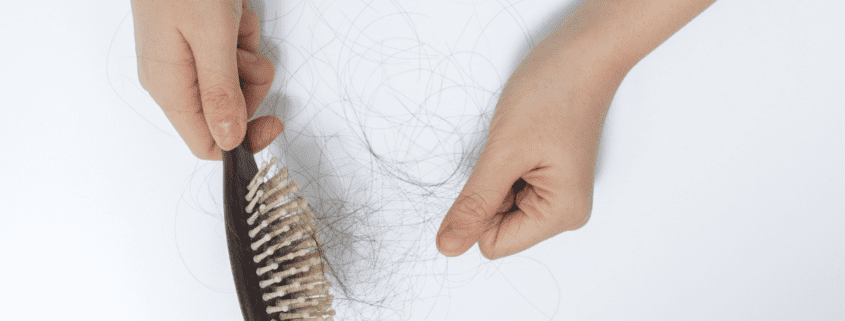 PRP Therapy for Hair Loss